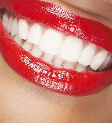 Ako na biele zuby